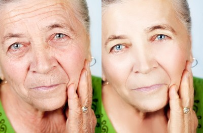 Treatment of wrinkles on skin