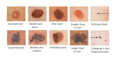 Types and symptoms of melanoma