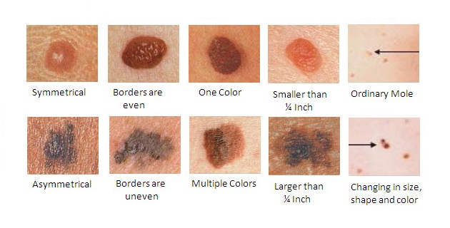 Stages of Melanoma - AIM at Melanoma