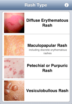 Types of rash
