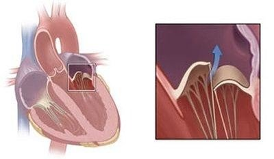 Causes and symptoms of Cardiovascular Collapse