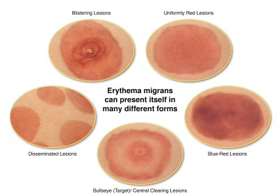 Causes and symptoms of allergies on the skin