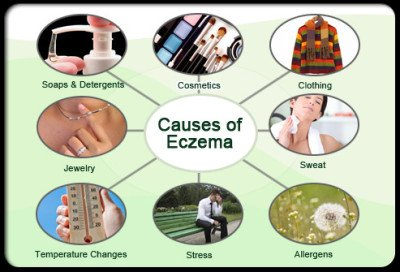 Causes and treatment of eczema