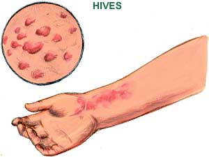 Causes of hives