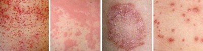 Causes of spots and rashes on the skin