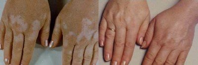 Placental therapy vitiligo