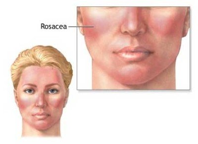 Symptoms and causes of rosacea