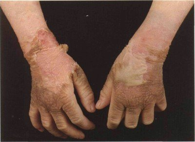 Symptoms and treatment of ichthyosis