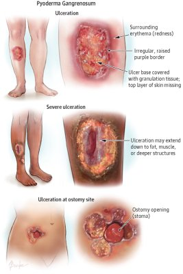 Symptoms of pyoderma