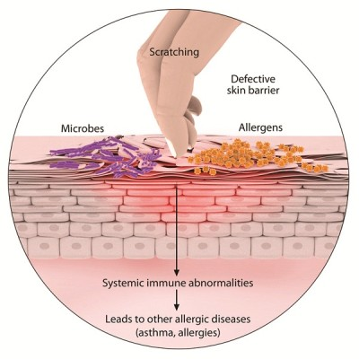 Treatment of diseases of the skin