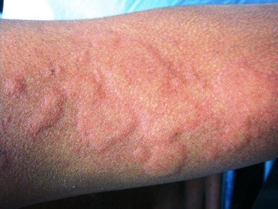 Treatment of urticaria