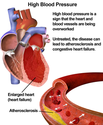What to do for high blood pressure