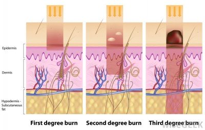 What to do in case of burns - doctor's consultation