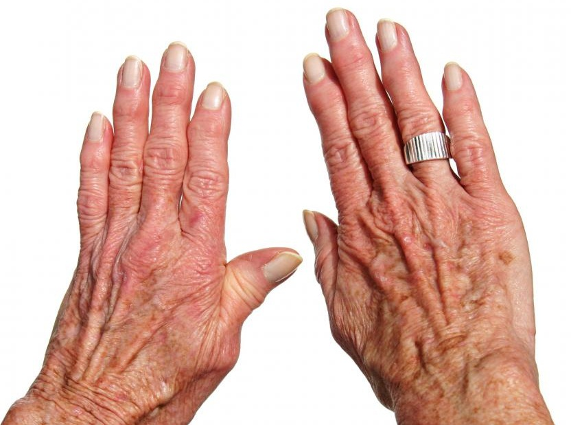 Brucellosis arthritis - causes, symptoms and treatment