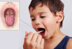 Diphtheria - causes, symptoms and treatment