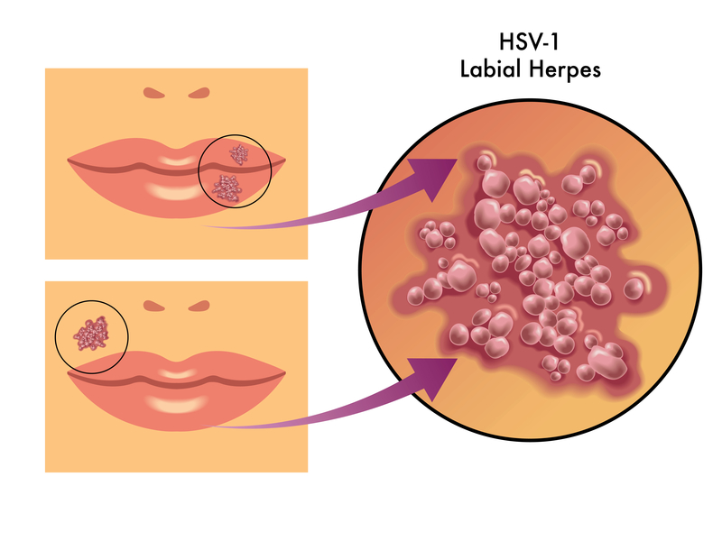 It is important to note that HSV-1 can cause genital herpes 2