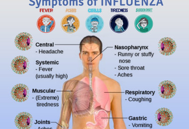 Influenza - causes, symptoms and treatment of flu