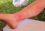 Photodermatitis - a sun Allergy