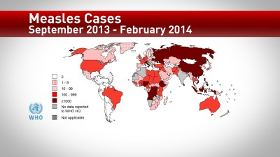 Symptoms and causes of measles