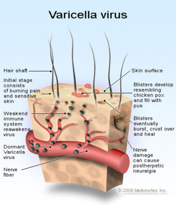 Symptoms of chicken pox (varicella)