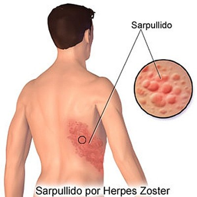 Treatment of herpes
