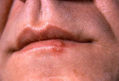 Herpes on the lips and genitals - causes and treatment of herpes