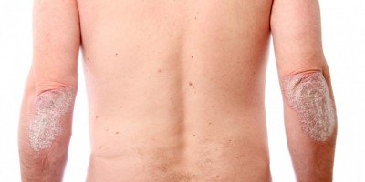 Psoriasis - causes, symptoms and treatment