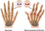 Arthritis - symptoms and treatment