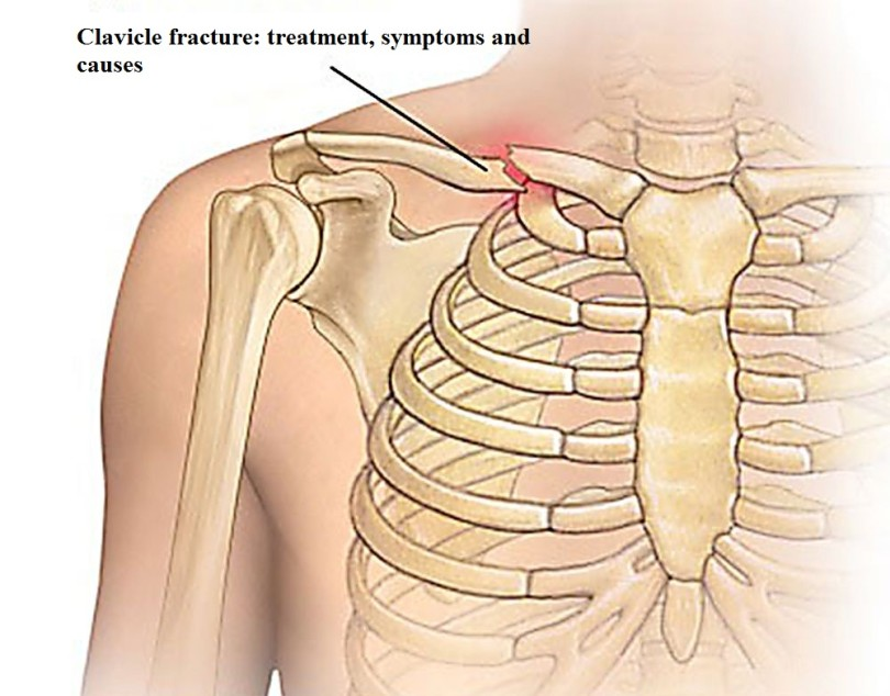 Clavicle fracture: treatment, symptoms and causes
