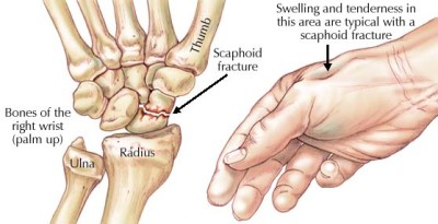 Fracture of the hand
