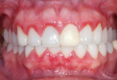Gingivitis in children