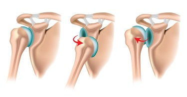 Shoulder dislocation - symptoms and treatment