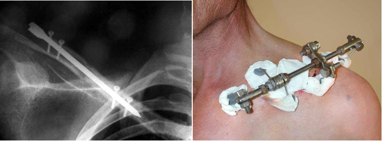 Surgical treatment of clavicle fracture
