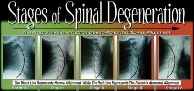 Treatment of degenerative disc disease of the cervical spine