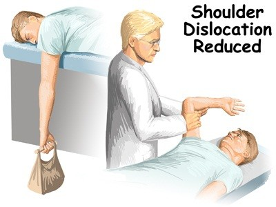 Surgery for a dislocated shoulder