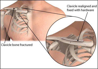 Fracture of the clavicle