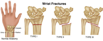 Fracture wrist treatment