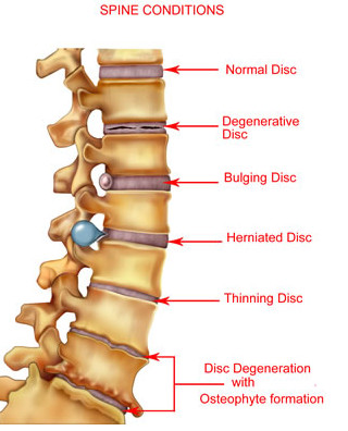 Symptoms of cervical degenerative disc disease