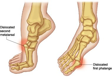 Symptoms of dislocation of foot
