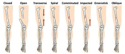 Types of broken arm