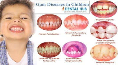 Treatment of gingivitis in children