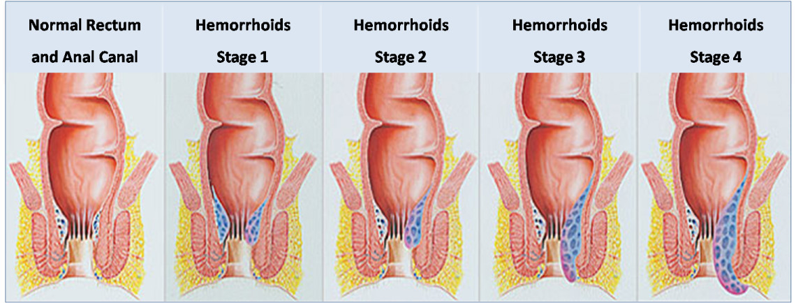 with external hemmoroids Anal intercourse
