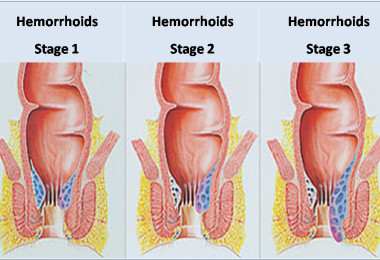 Hemorrhoids – symptoms and treatment