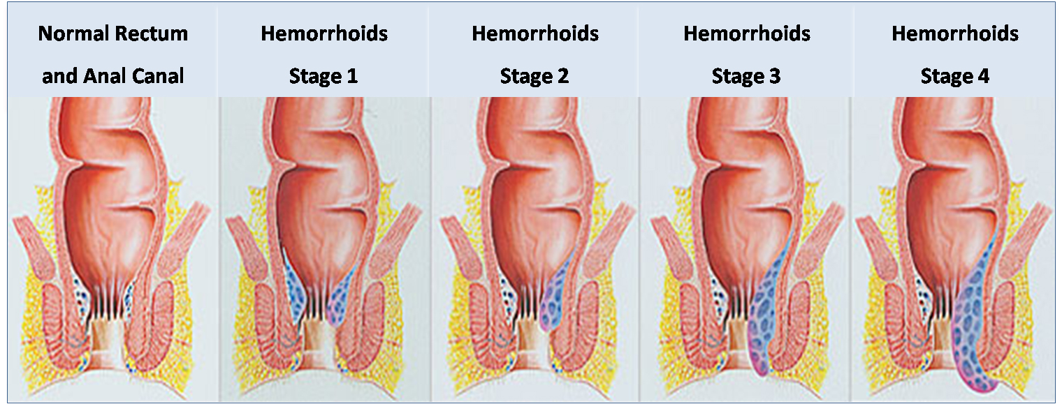 hemorrhoids during pregnancy - causes, symptoms and treatment, Human Body