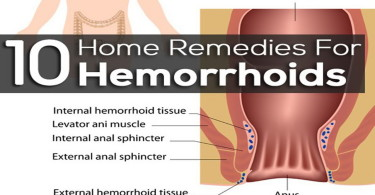 Hemorrhoids treatment medicine
