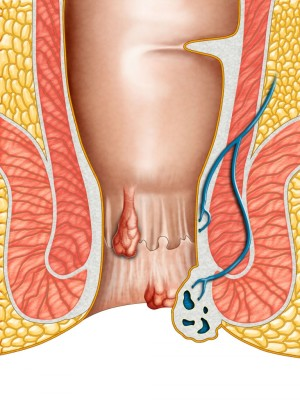 Male and female causes of hemorrhoids