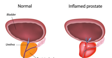 Prostatitis - inflammation of the prostate gland