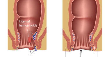 Surgery for hemorrhoids