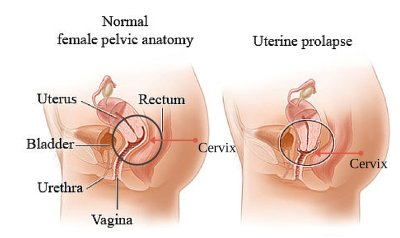 Treatment of uterine prolapse