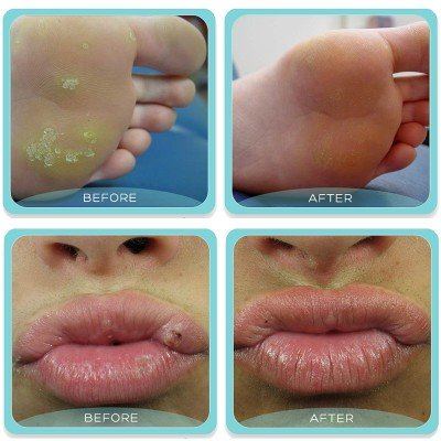Removal of warts with laser - before and after